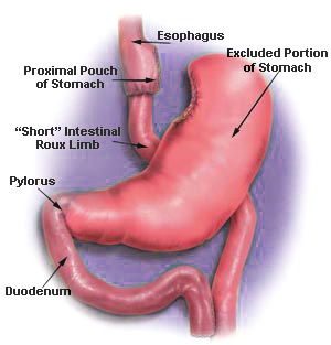 gastric-bypass-surgery