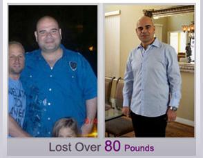 Weight Loss Surgery California Laparoscopic Gastric Sleeve Lap